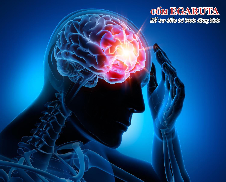 Bệnh viêm màng não có thể gây co giật, động kinh